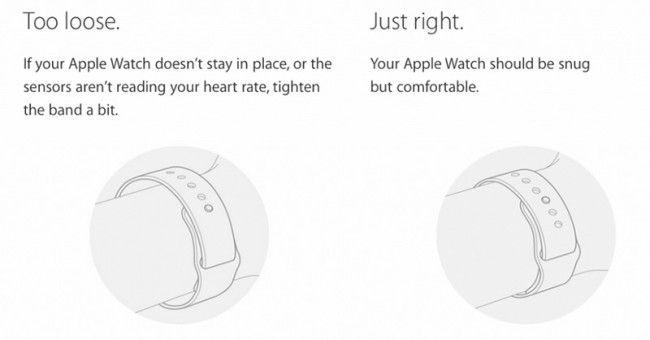 apple-watch-irritations-bracelets