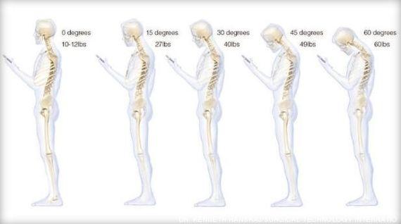 Mal di schiena smartphone