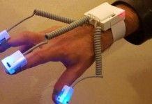 parkinson braccialetto smart