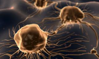 biochip tumori