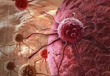 biopsie digitali